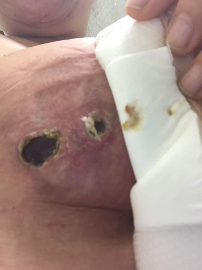 radiated boob implant popping out